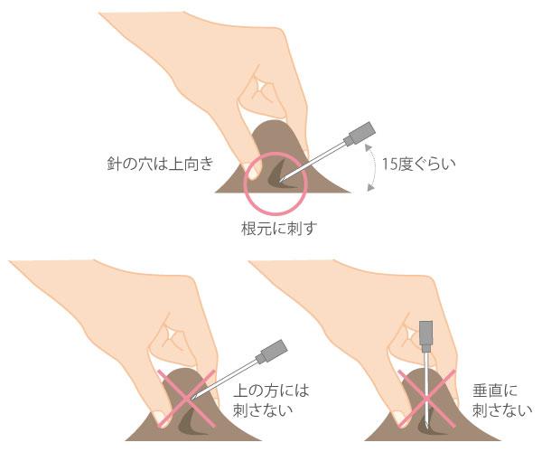 猫の肩甲骨下あたりの皮膚をつまみテントを張るようにする
